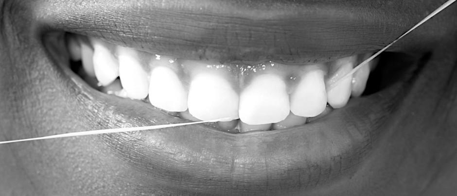 هل تنظيف الأسنان بلخيط يحدث فرقاً؟